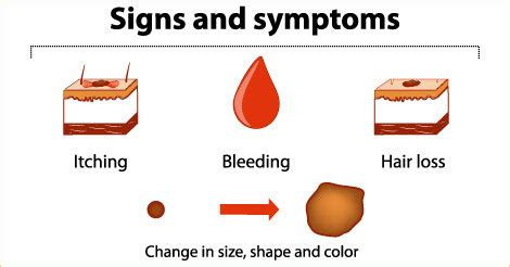 Research articles on skin cancer